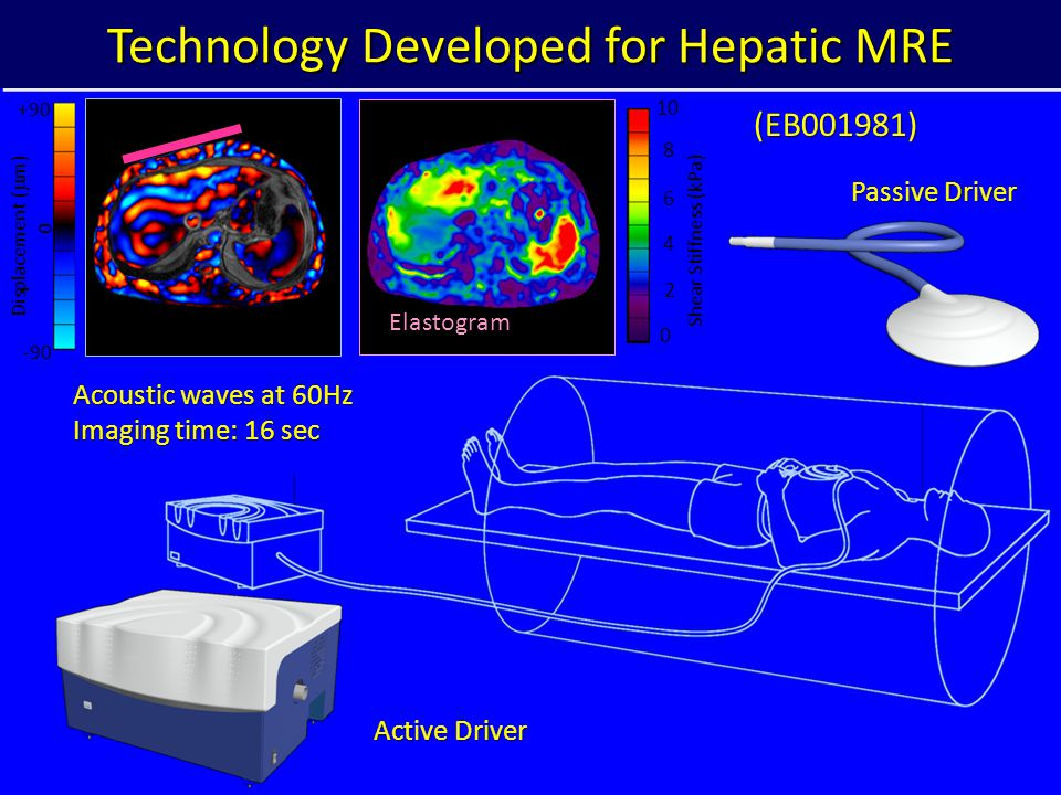 Technology Developed for Hepatic MRE -90 0 +90 Displacement (  m) Shear Stiffness (kPa) 0 10 4 6 8 2 Elastogram Active Driver Acoustic waves at 60Hz Imaging time: 16 sec Passive Driver (EB001981)