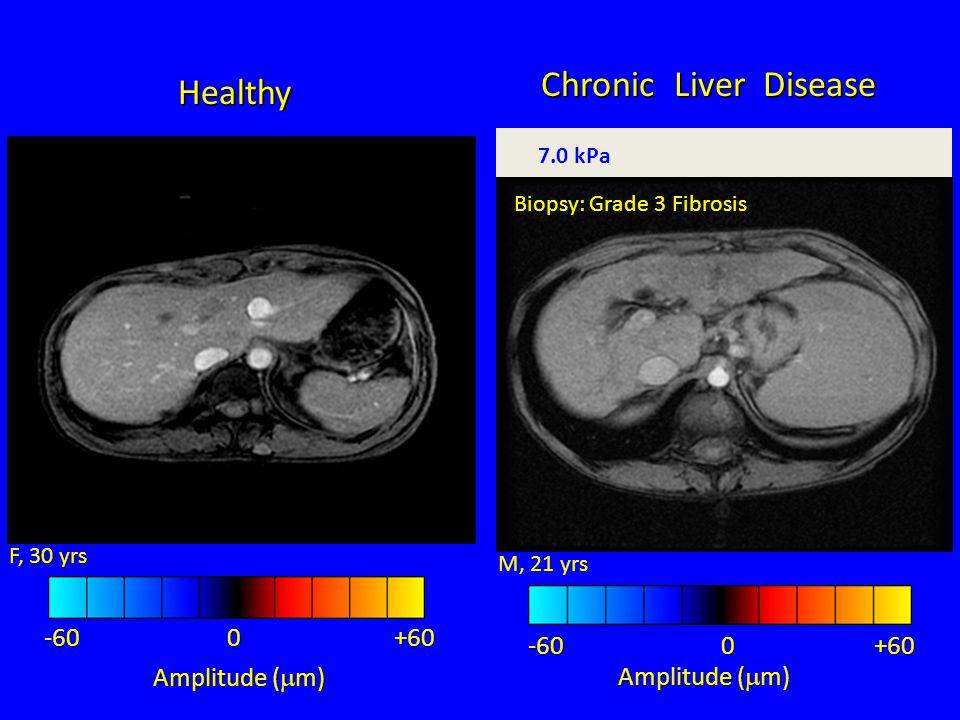 +60-60 Amplitude (  m) 0 M, 21 yrs -60 -60 +60 Amplitude (  m) 0 F, 30 yrs 2.0 kPa 7.0 kPa Biopsy: Grade 3 Fibrosis Healthy Chronic Liver Disease