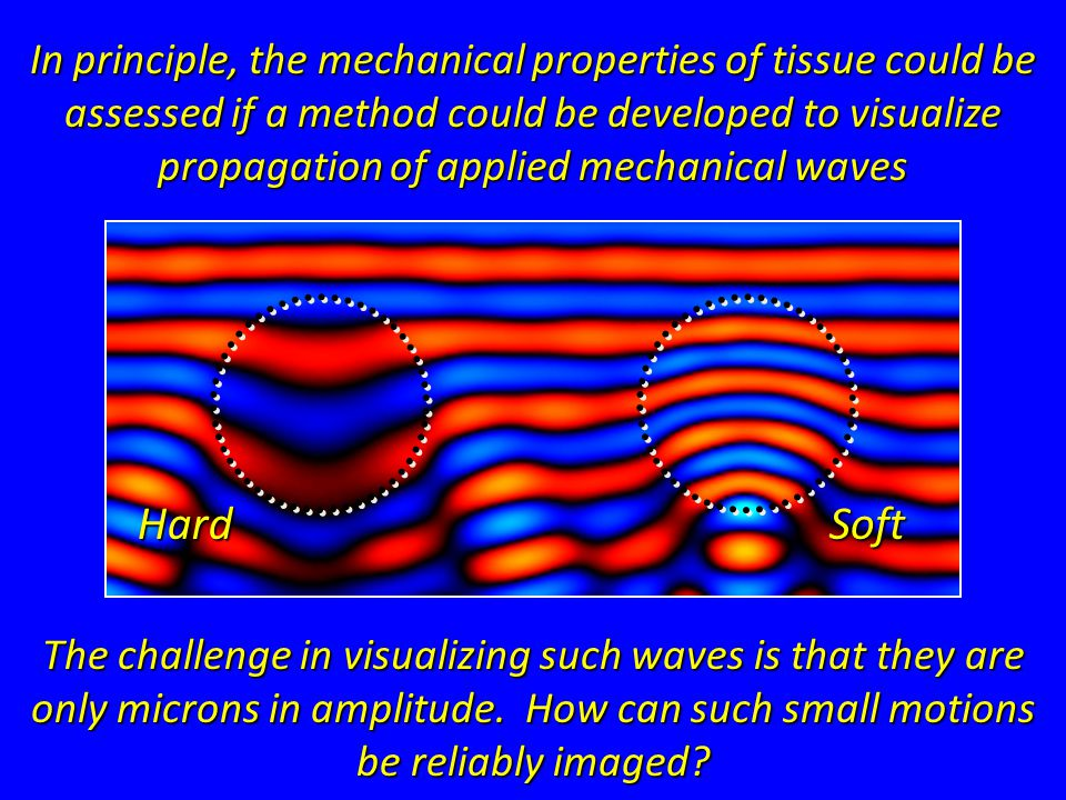 HardSoft In principle, the mechanical properties of tissue could be assessed if a method could be developed to visualize propagation of applied mechanical waves The challenge in visualizing such waves is that they are only microns in amplitude.