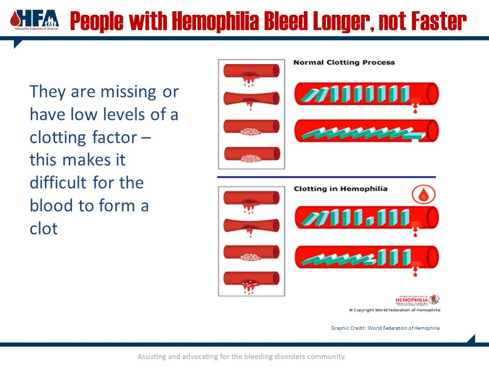 People with Hemophilia Bleed Longer, not Faster They are missing or have low levels of a clotting factor – this makes it difficult for the blood to form a clot Graphic Credit : World Federation of Hemophilia