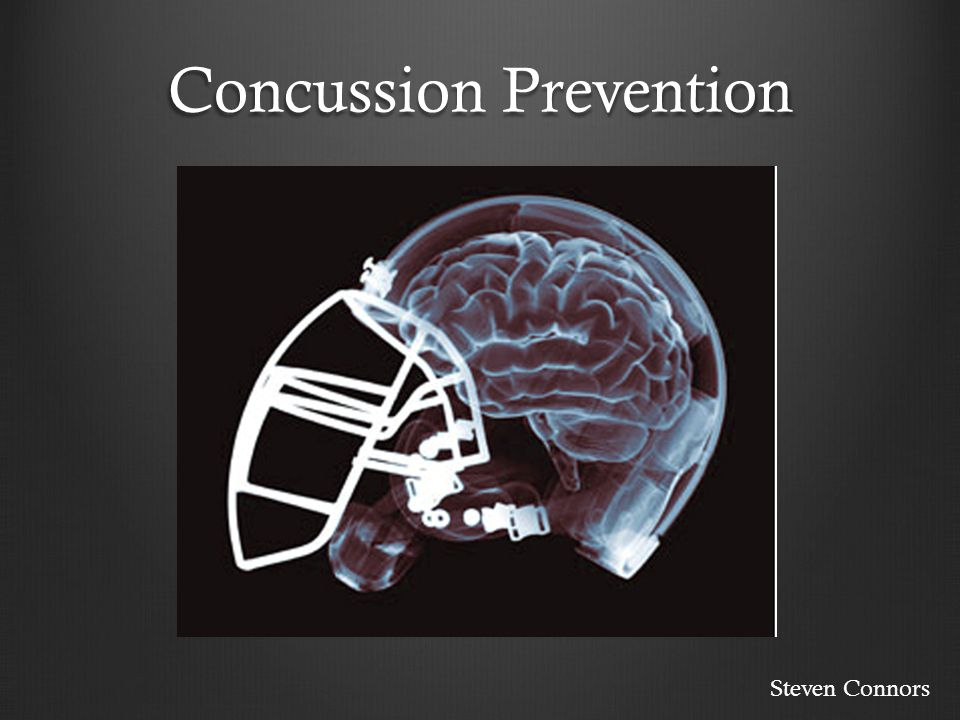 Concussion Prevention Steven Connors