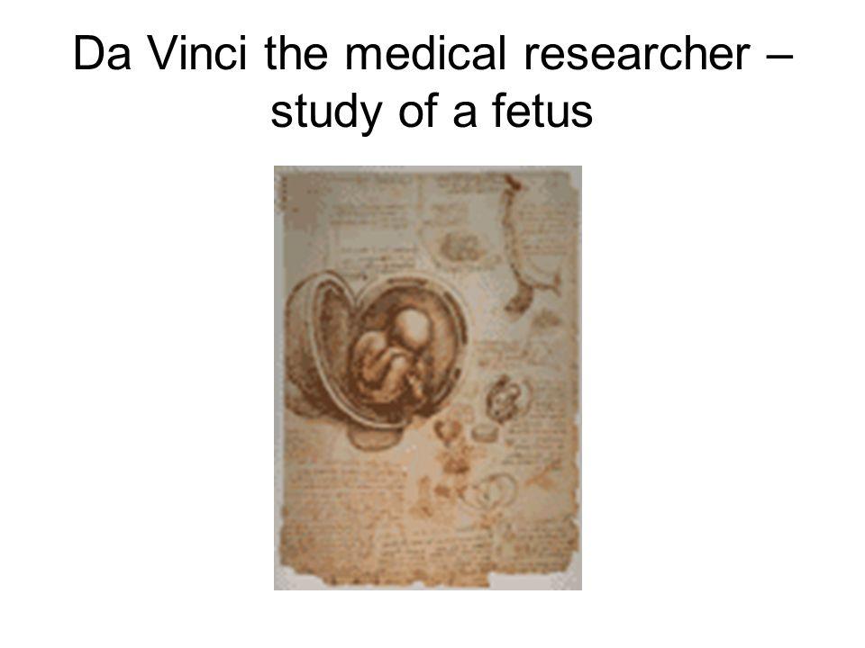 Da Vinci the medical researcher – study of a fetus