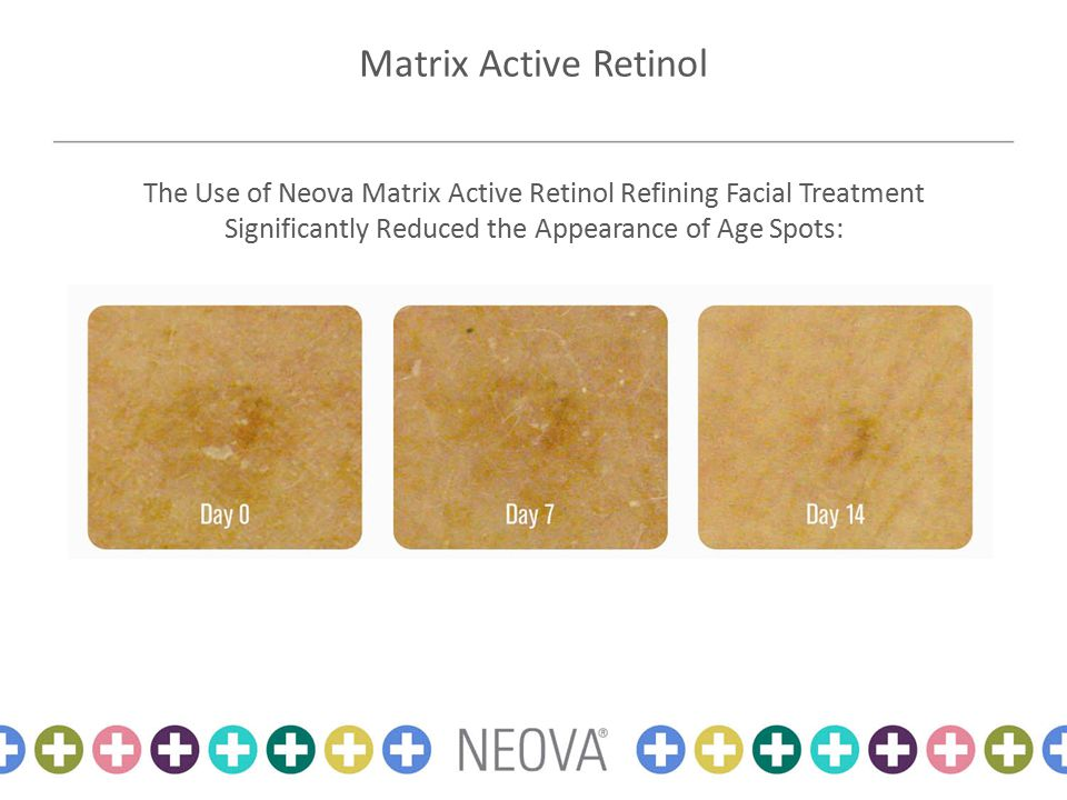 Matrix Active Retinol The Use of Neova Matrix Active Retinol Refining Facial Treatment Significantly Reduced the Appearance of Age Spots: