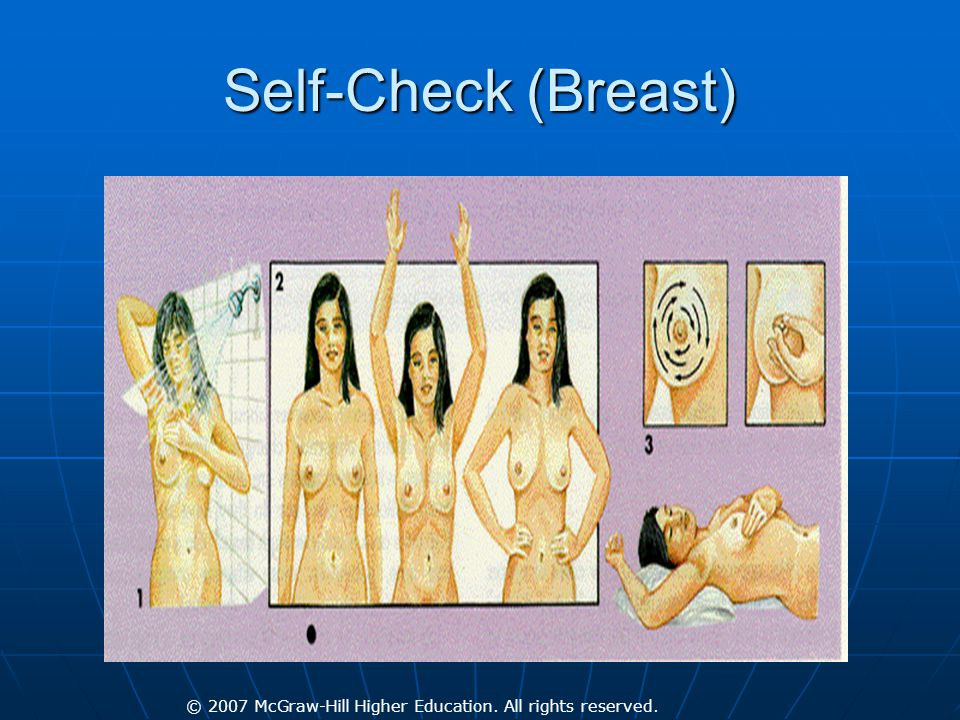 © 2007 McGraw-Hill Higher Education. All rights reserved. Self-Check (Breast)