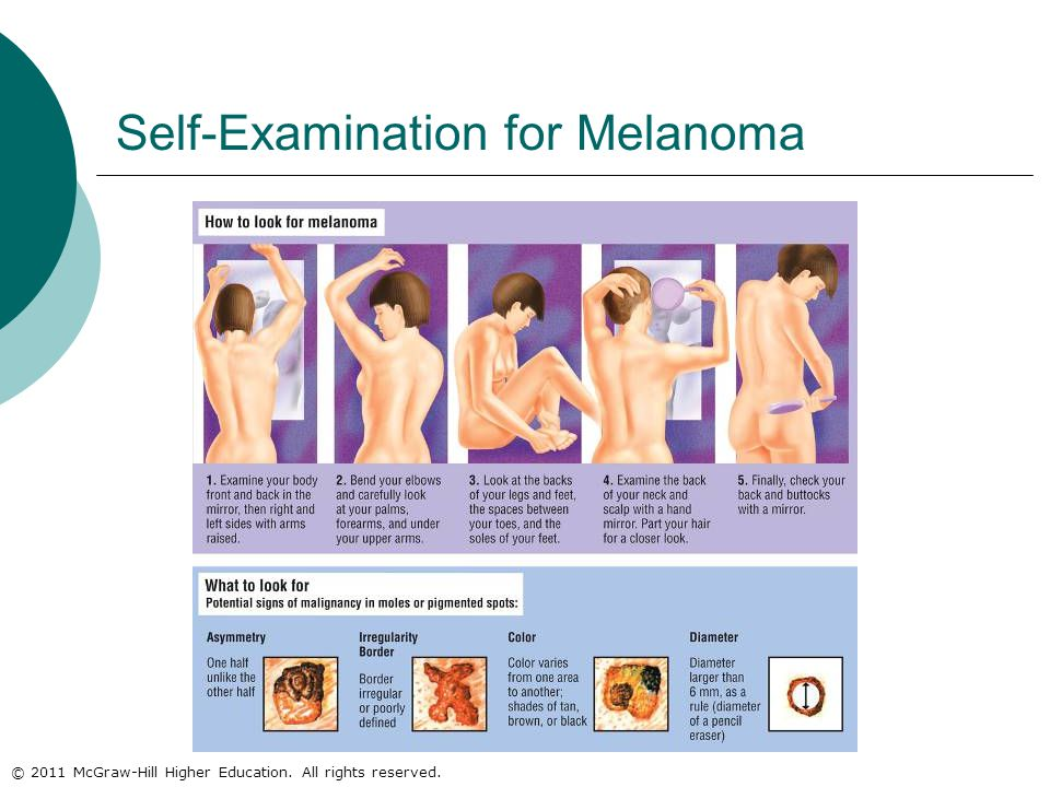 © 2011 McGraw-Hill Higher Education. All rights reserved. Self-Examination for Melanoma