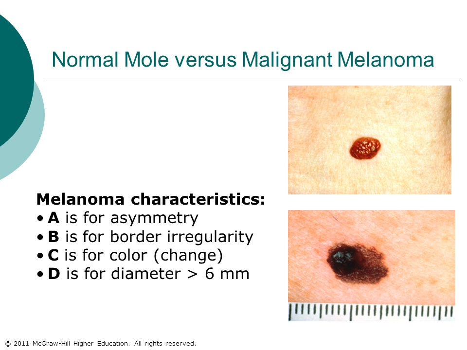 © 2011 McGraw-Hill Higher Education. All rights reserved. Normal Mole versus Malignant Melanoma Melanoma characteristics: A is for asymmetry B is for