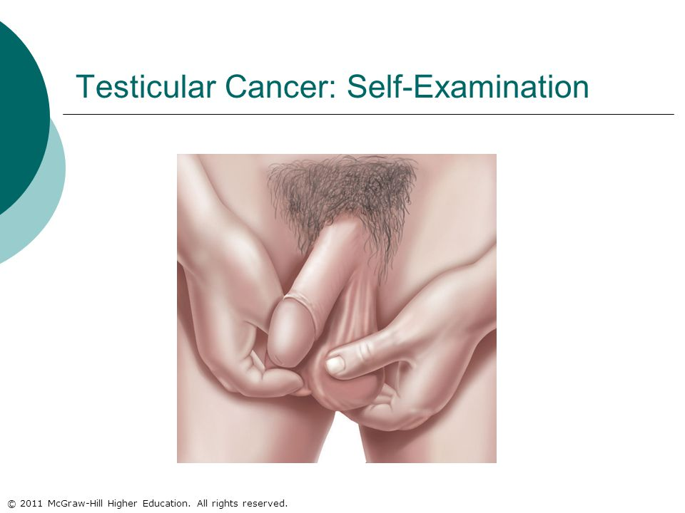 © 2011 McGraw-Hill Higher Education. All rights reserved. Testicular Cancer: Self-Examination