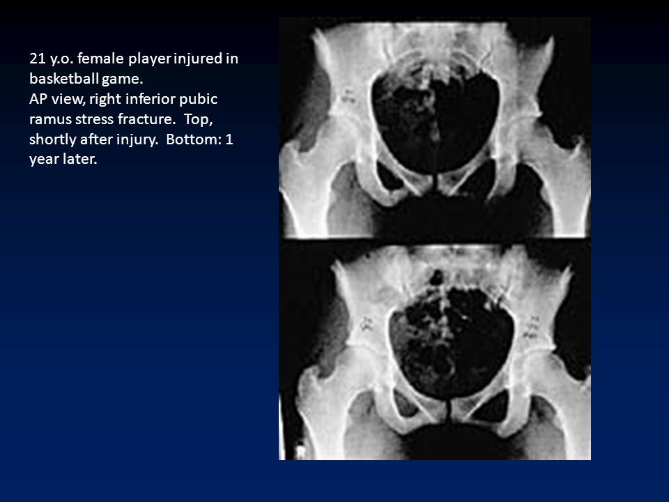 21 y.o. female player injured in basketball game. AP view, right inferior pubic ramus stress fracture. Top, shortly after injury. Bottom: 1 year later