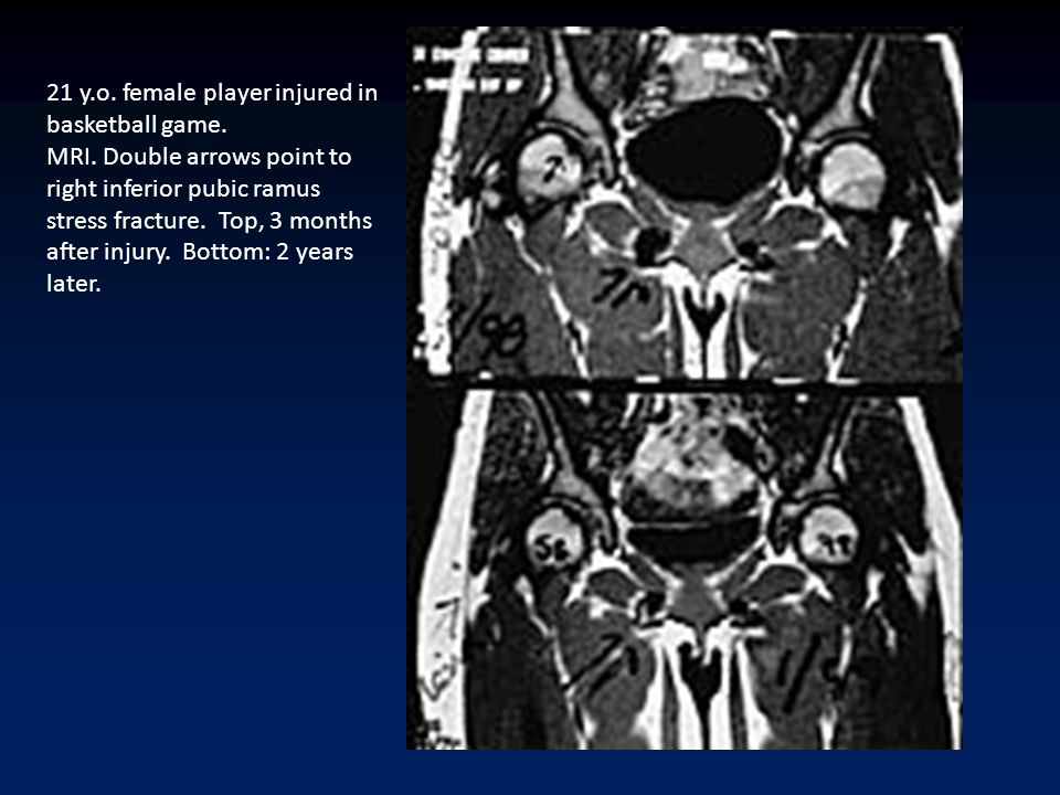 21 y.o. female player injured in basketball game. MRI. Double arrows point to right inferior pubic ramus stress fracture. Top, 3 months after injury.