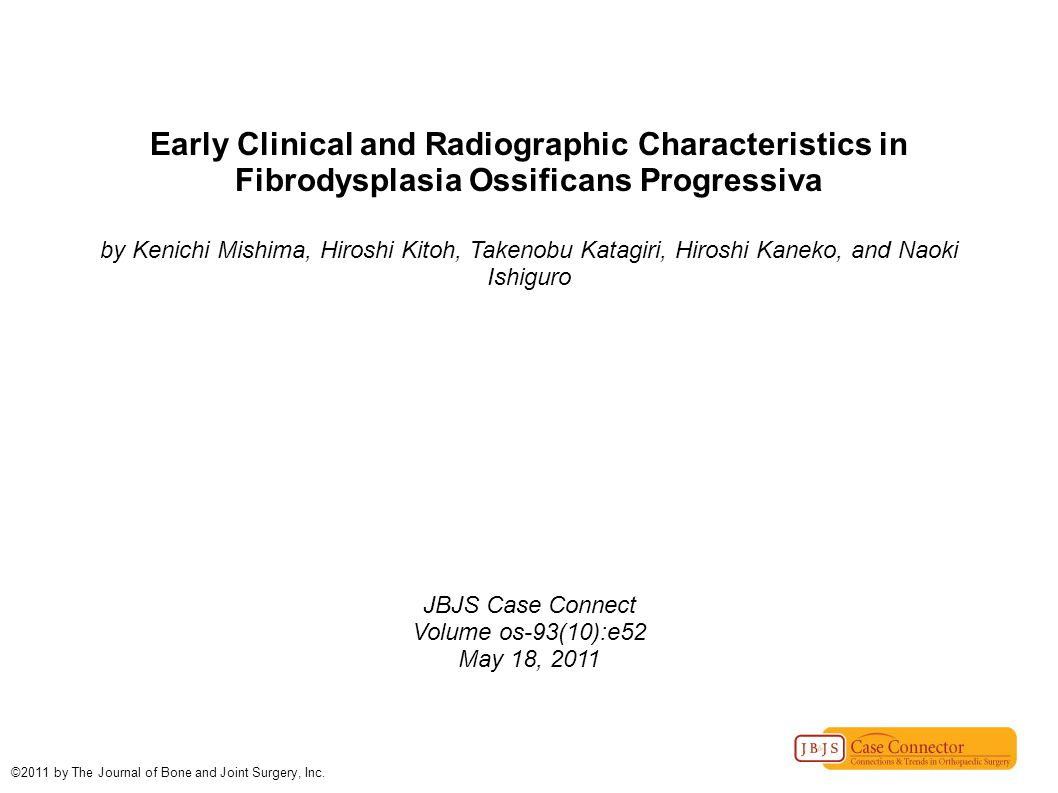Early Clinical and Radiographic Characteristics in Fibrodysplasia Ossificans Progressiva by Kenichi Mishima, Hiroshi Kitoh, Takenobu Katagiri, Hiroshi Kaneko, and Naoki Ishiguro JBJS Case Connect Volume os-93(10):e52 May 18, 2011 ©2011 by The Journal of Bone and Joint Surgery, Inc.