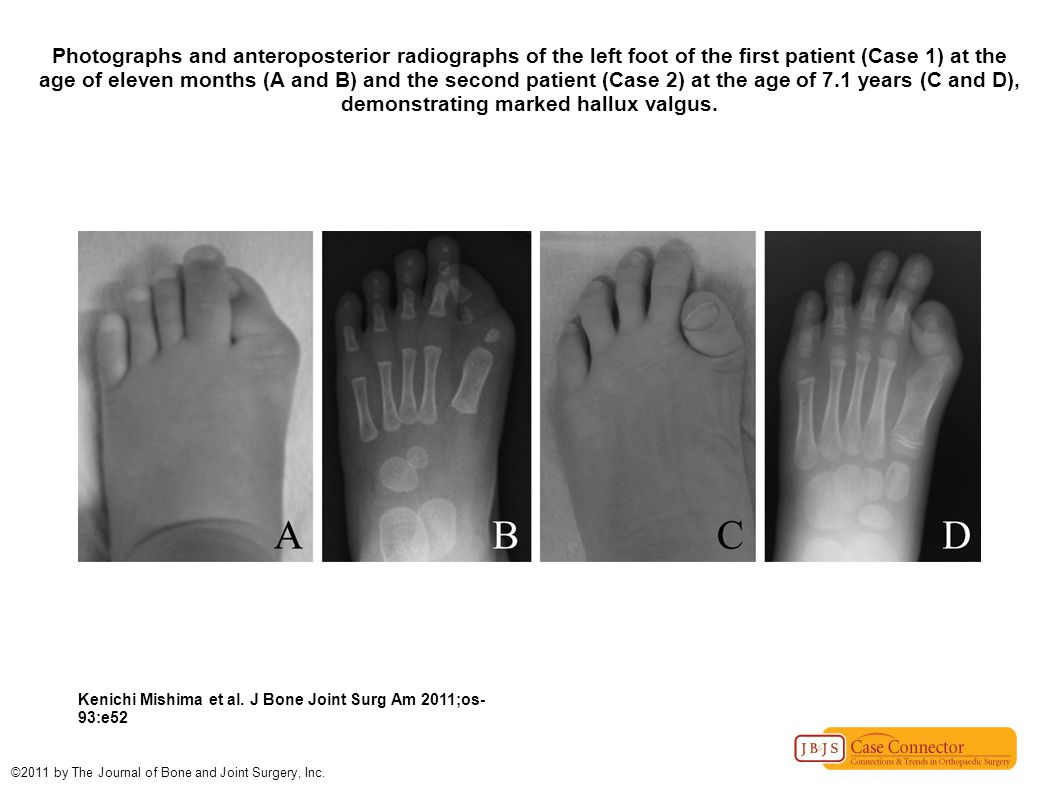 Photographs and anteroposterior radiographs of the left foot of the first patient (Case 1) at the age of eleven months (A and B) and the second patient (Case 2) at the age of 7.1 years (C and D), demonstrating marked hallux valgus.