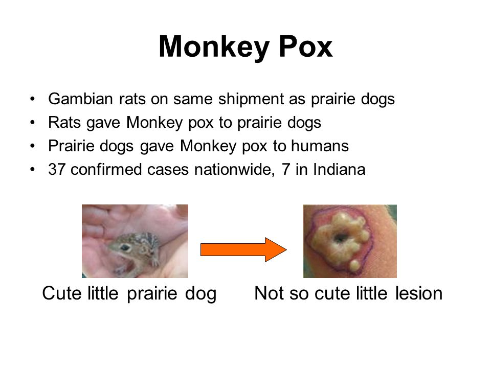 Monkey Pox Gambian rats on same shipment as prairie dogs Rats gave Monkey pox to prairie dogs Prairie dogs gave Monkey pox to humans 37 confirmed cases nationwide, 7 in Indiana Cute little prairie dog Not so cute little lesion