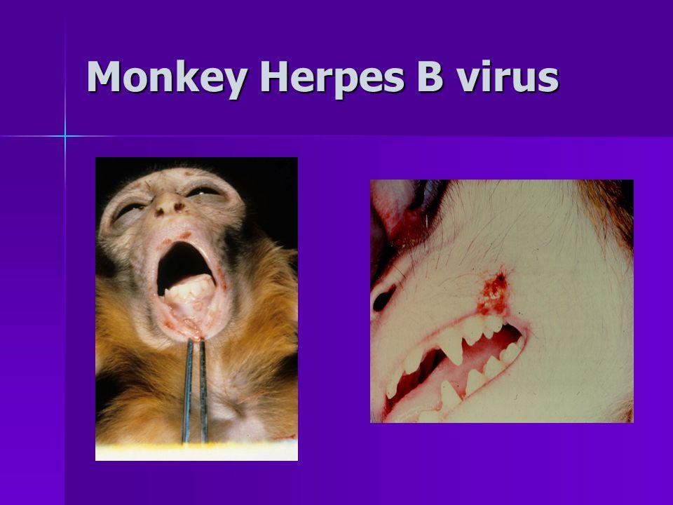 Monkey Herpes B virus