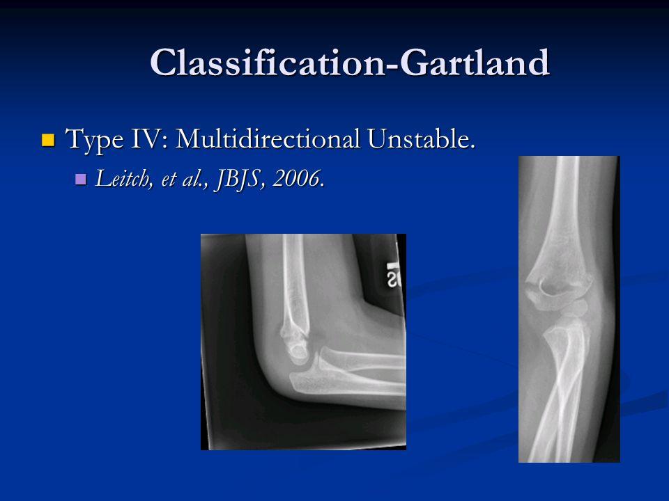 Classification-Gartland Classification-Gartland Type IV: Multidirectional Unstable. Type IV: Multidirectional Unstable. Leitch, et al., JBJS, 2006. Le