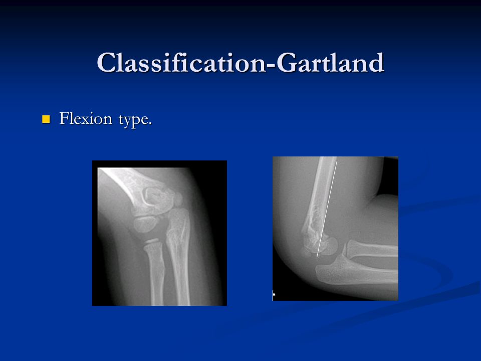 Classification-Gartland Flexion type. Flexion type.