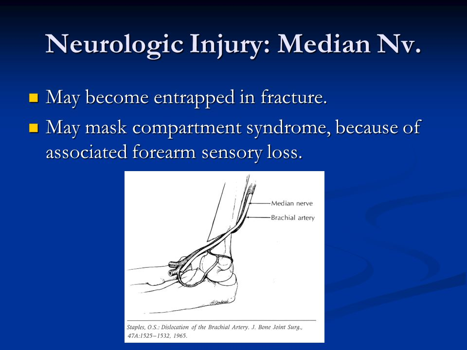 Neurologic Injury: Median Nv. May become entrapped in fracture. May become entrapped in fracture. May mask compartment syndrome, because of associated