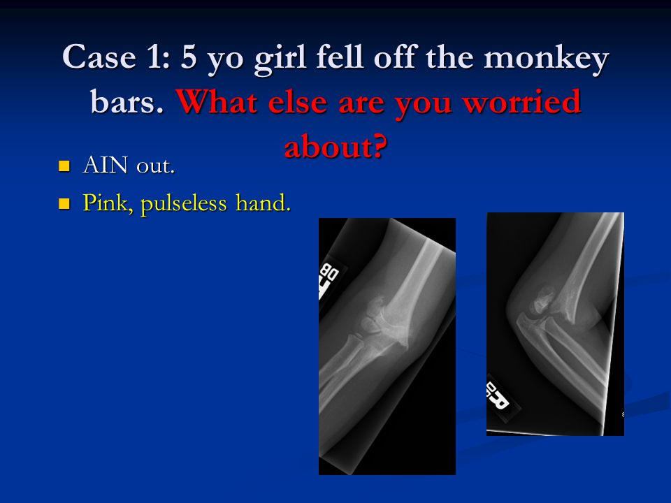 Case 1: 5 yo girl fell off the monkey bars. What else are you worried about? AIN out. AIN out. Pink, pulseless hand. Pink, pulseless hand.