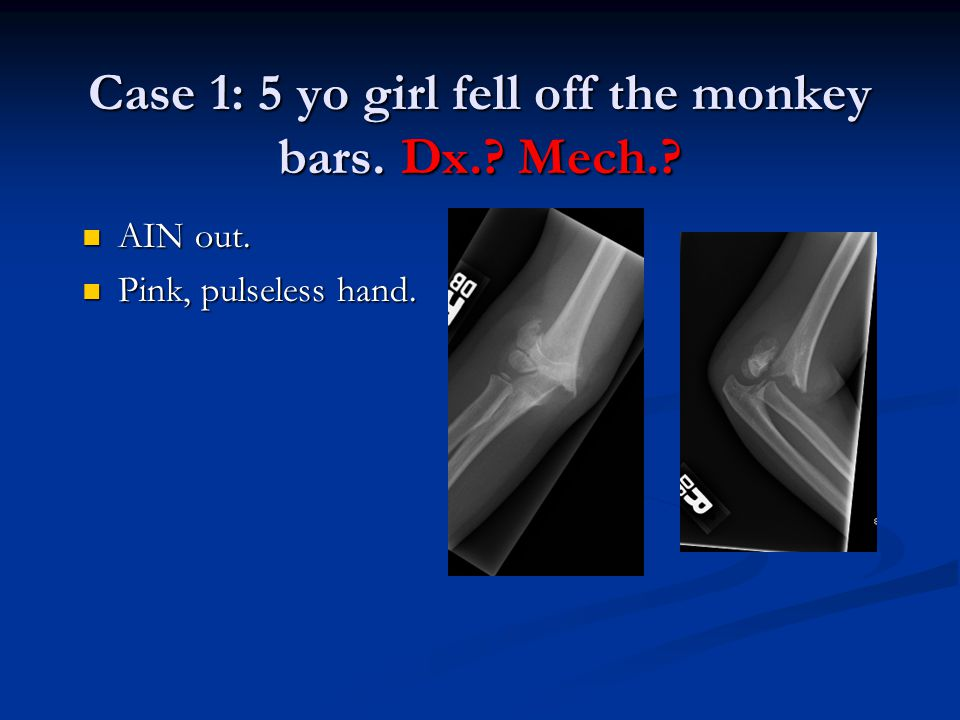 Case 1: 5 yo girl fell off the monkey bars. Dx.? Mech.? AIN out. AIN out. Pink, pulseless hand. Pink, pulseless hand.