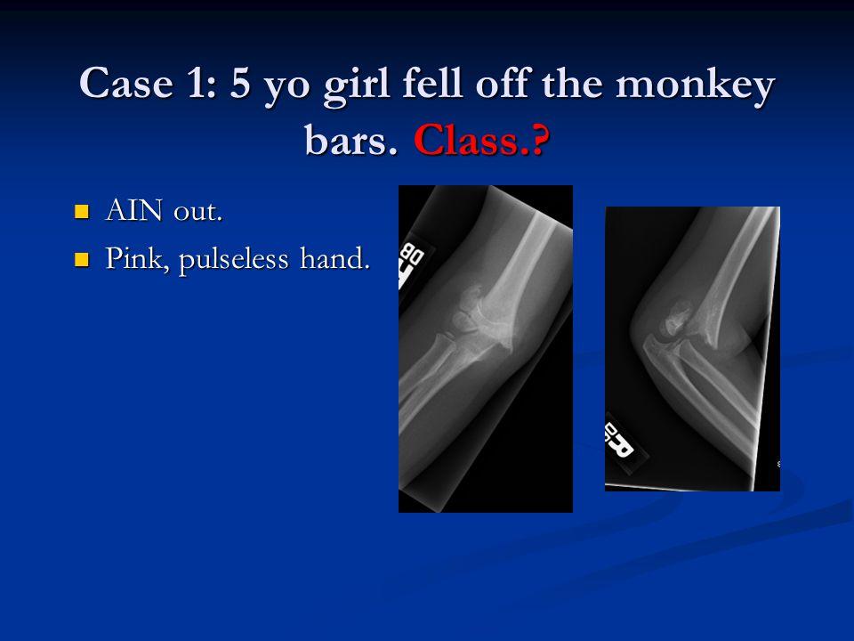 Case 1: 5 yo girl fell off the monkey bars. Class.? AIN out. AIN out. Pink, pulseless hand. Pink, pulseless hand.