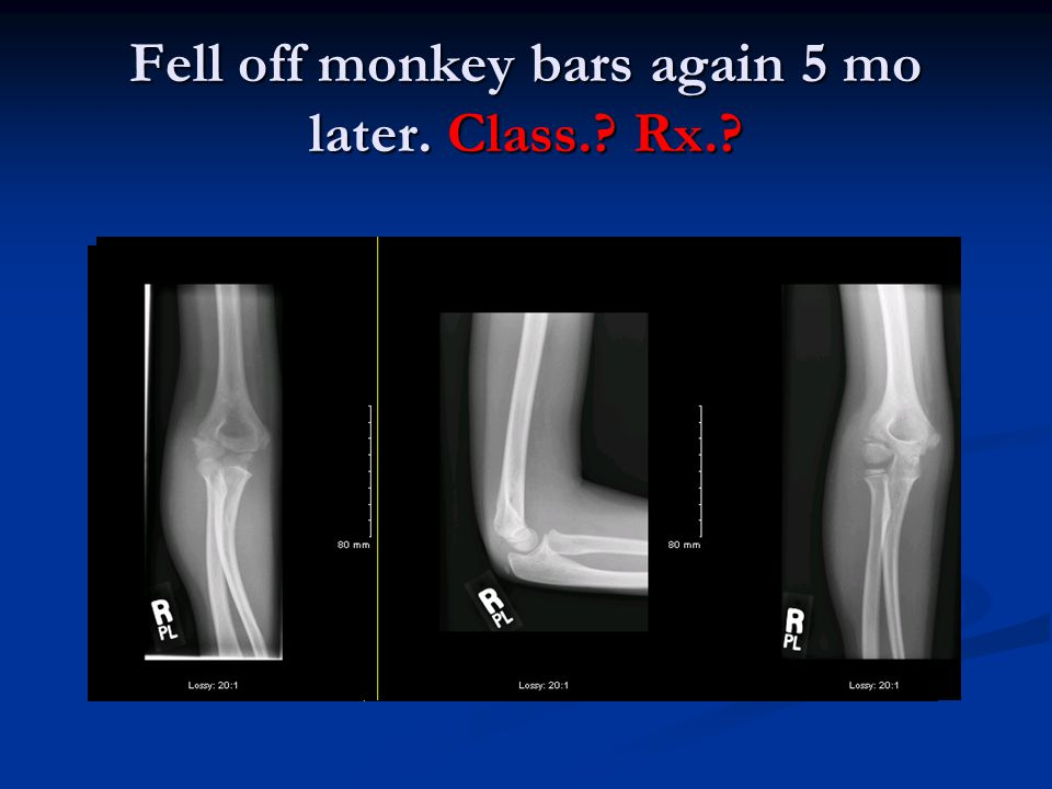 Fell off monkey bars again 5 mo later. Class.? Rx.?