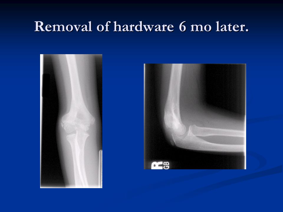 Removal of hardware 6 mo later.