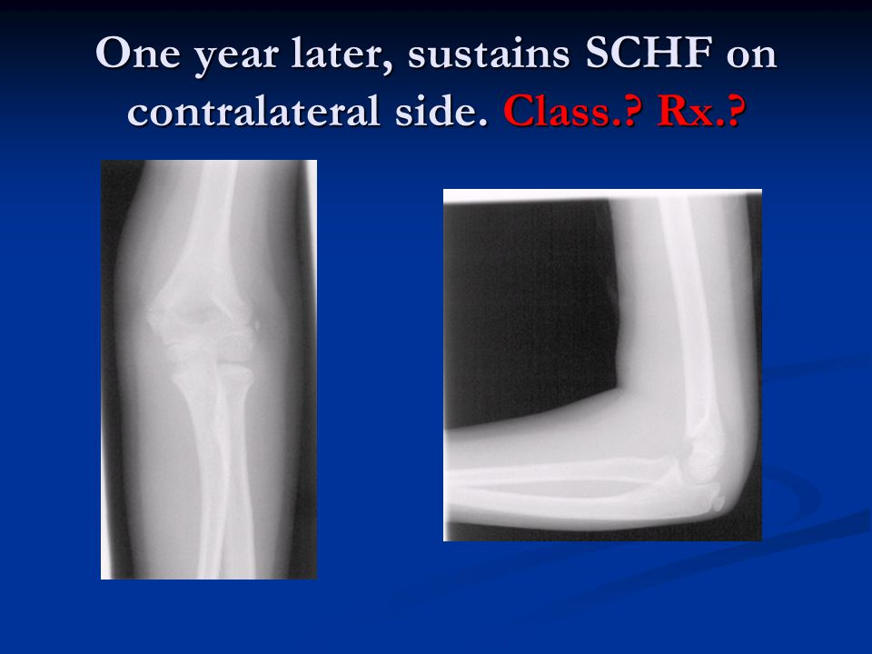 One year later, sustains SCHF on contralateral side. Class.? Rx.?