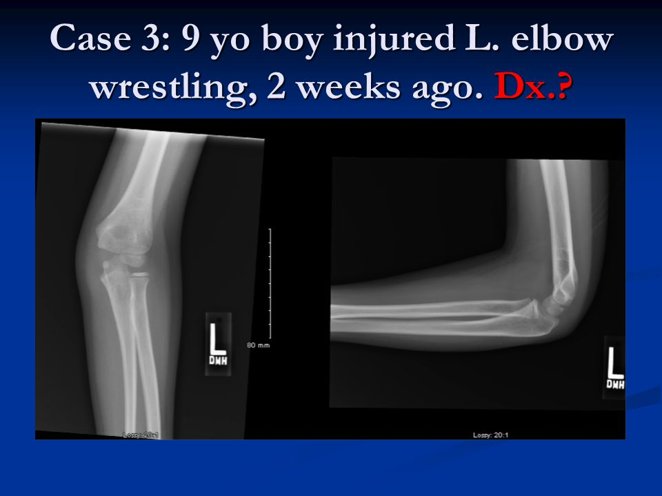 Case 3: 9 yo boy injured L. elbow wrestling, 2 weeks ago. Dx.?