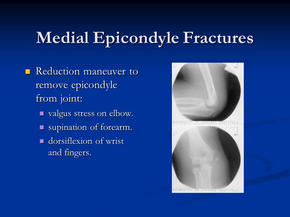 Medial Epicondyle Fractures Reduction maneuver to remove epicondyle from joint: Reduction maneuver to remove epicondyle from joint: valgus stress on e