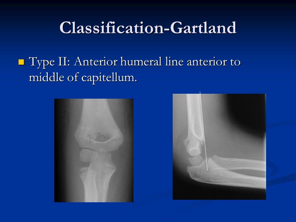 Classification-Gartland Type II: Anterior humeral line anterior to middle of capitellum. Type II: Anterior humeral line anterior to middle of capitell