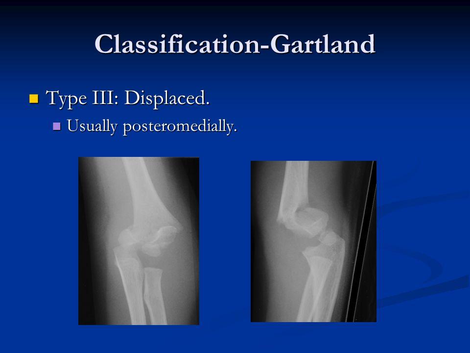 Classification-Gartland Type III: Displaced. Type III: Displaced. Usually posteromedially. Usually posteromedially.