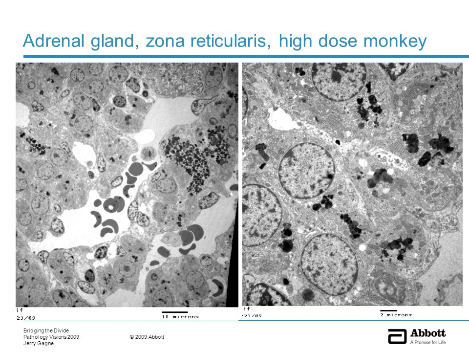 Bridging the Divide Pathology Visions 2009 Jerry Gagne © 2009 Abbott Adrenal gland, zona reticularis, high dose monkey