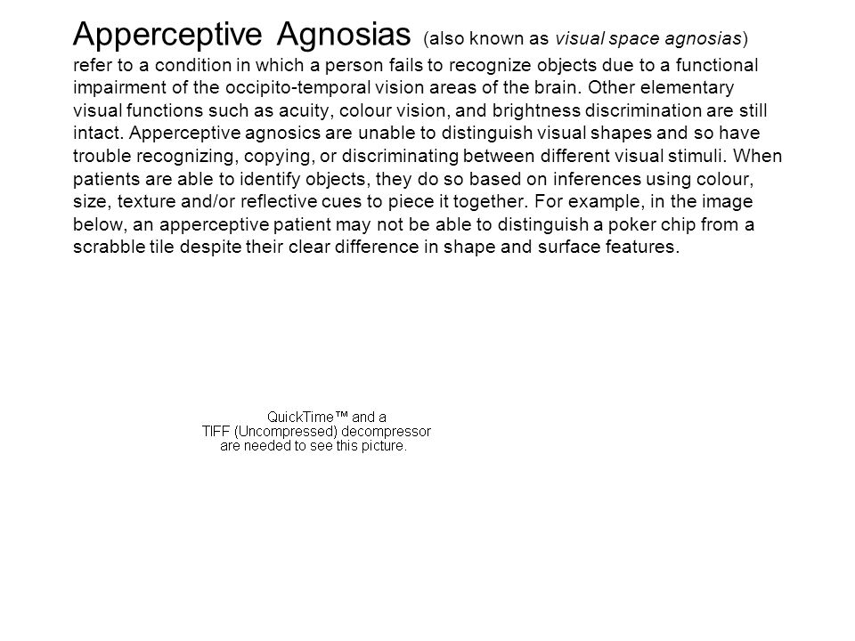 Apperceptive Agnosias (also known as visual space agnosias) refer to a condition in which a person fails to recognize objects due to a functional impa