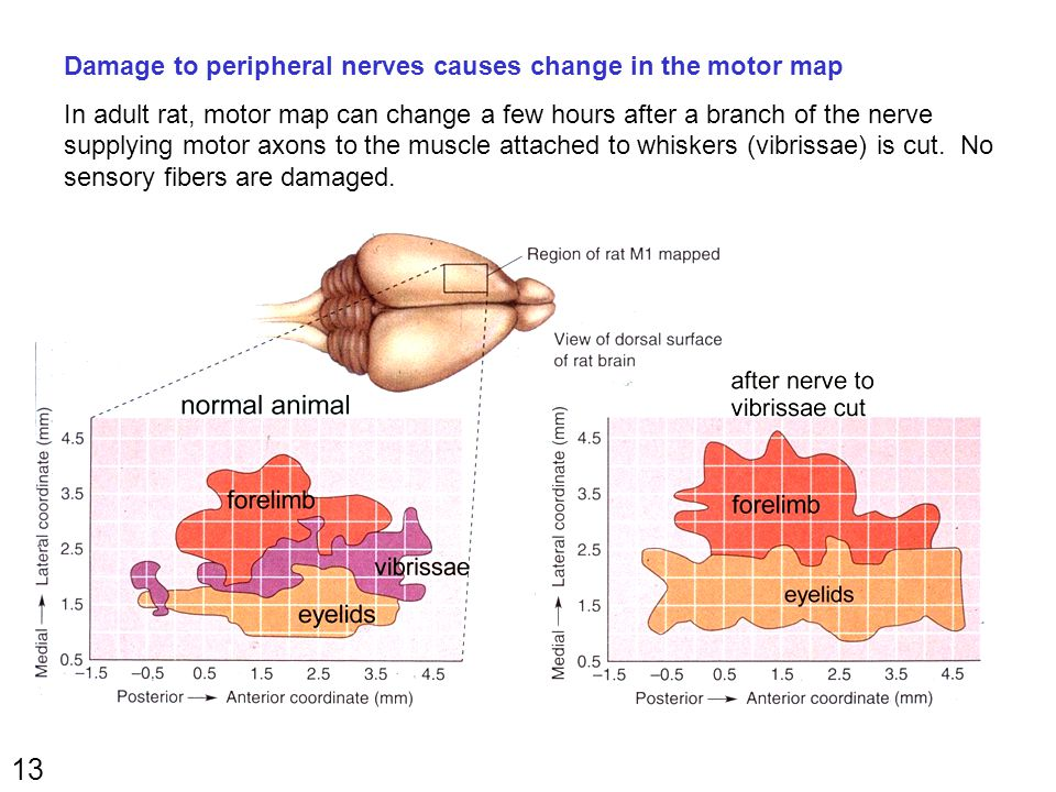 13 Damage to peripheral nerves causes change in the motor map In adult rat, motor map can change a few hours after a branch of the nerve supplying motor axons to the muscle attached to whiskers (vibrissae) is cut.