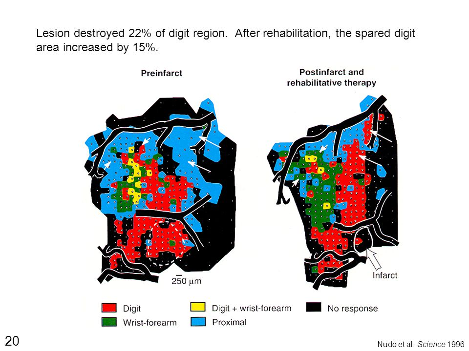 20 Nudo et al. Science 1996 Lesion destroyed 22% of digit region. After rehabilitation, the spared digit area increased by 15%.