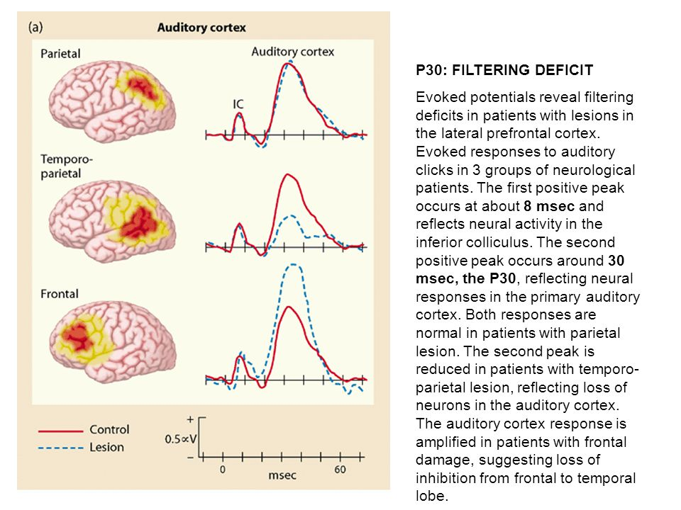 P30: FILTERING DEFICIT Evoked potentials reveal filtering deficits in patients with lesions in the lateral prefrontal cortex.