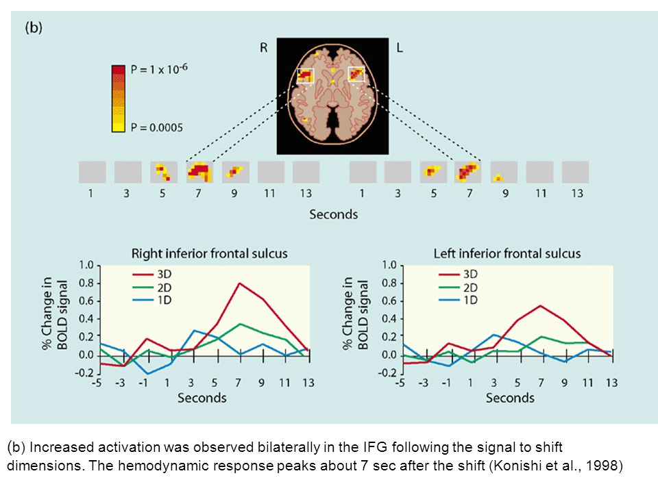 ( b) Increased activation was observed bilaterally in the IFG following the signal to shift dimensions.