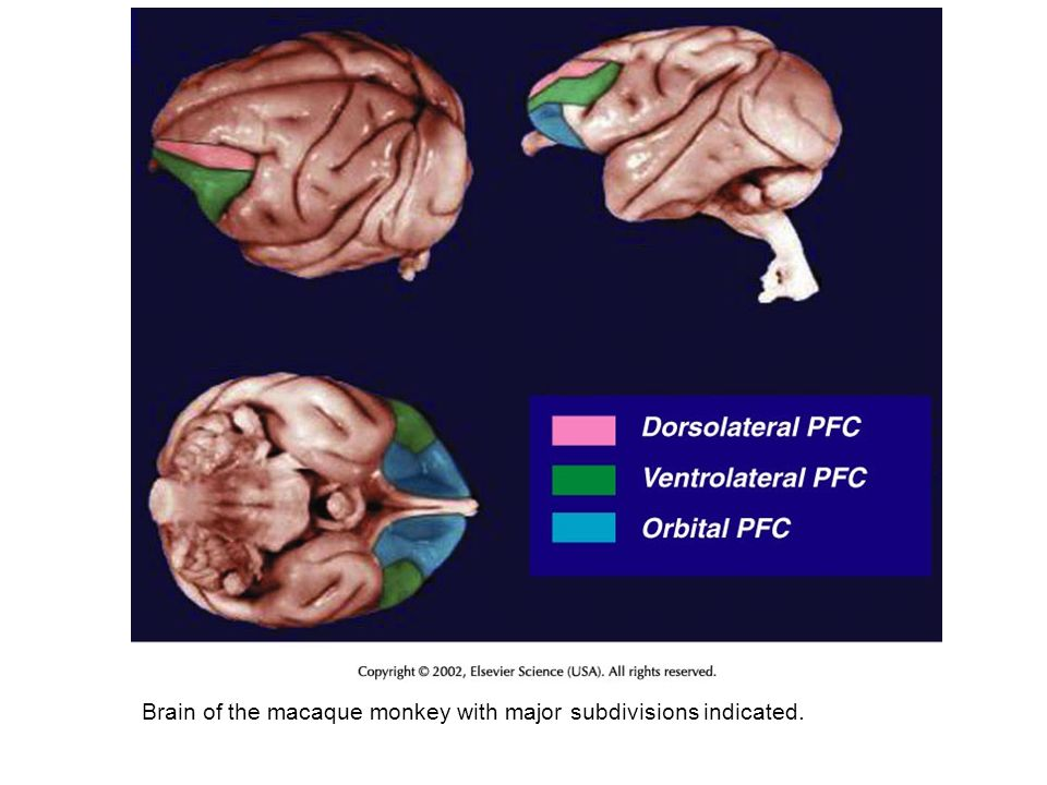 Brain of the macaque monkey with major subdivisions indicated.