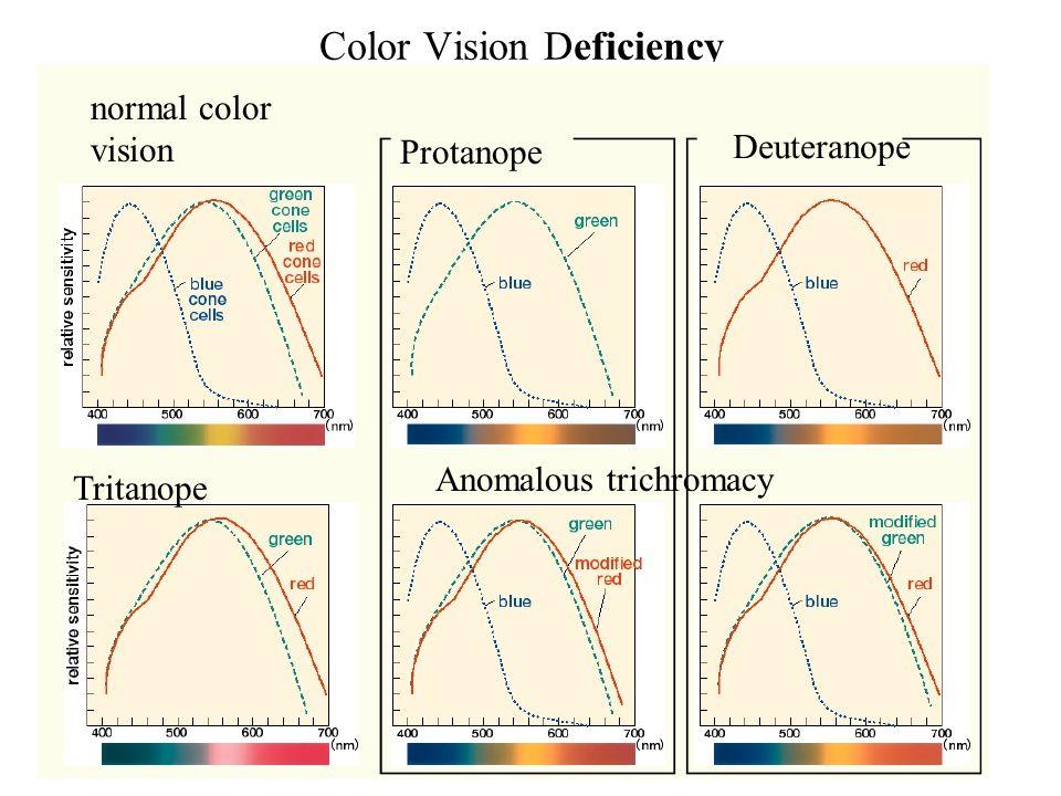 Color Vision Deficiency Deuteranope Tritanope normal color vision Protanope Anomalous trichromacy