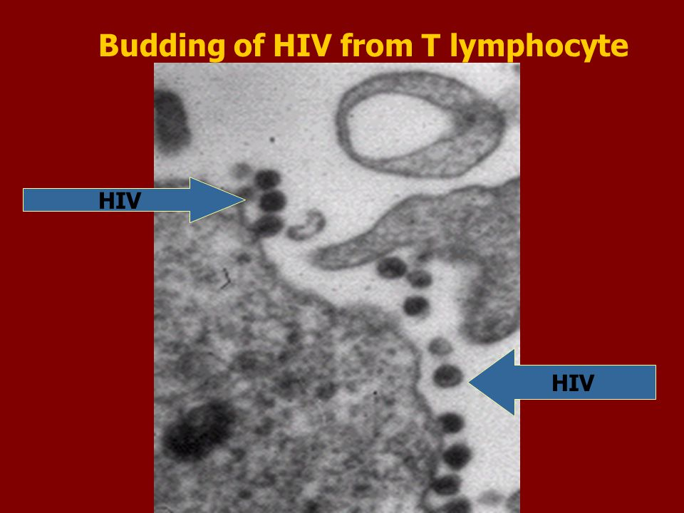 Budding of HIV from T lymphocyte HIV