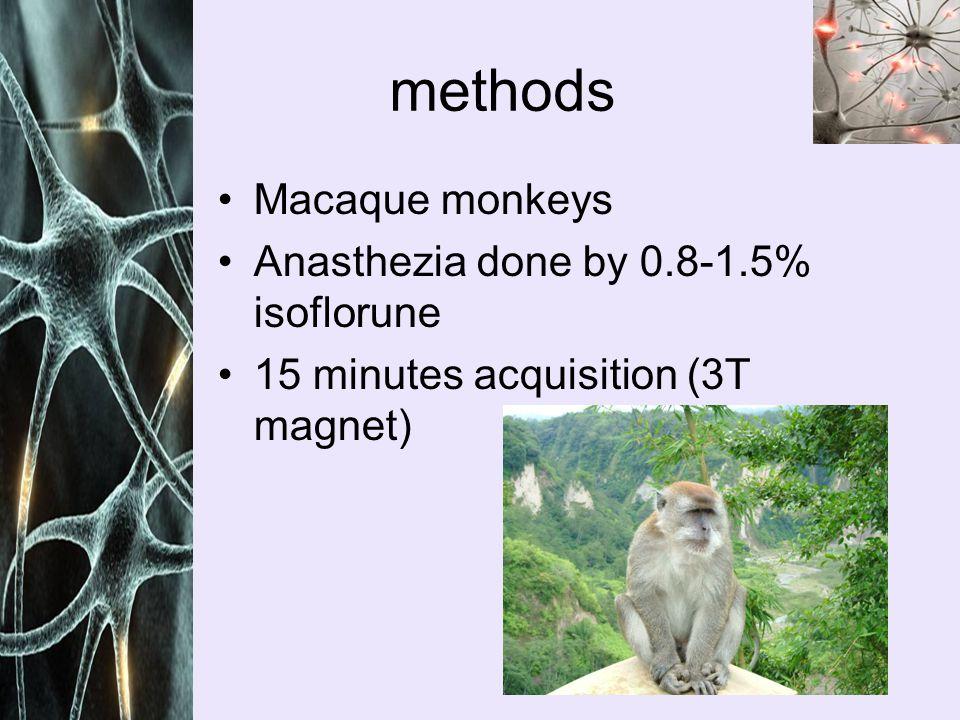 Articles : Raichle, M.E., et al., A default mode of brain function.