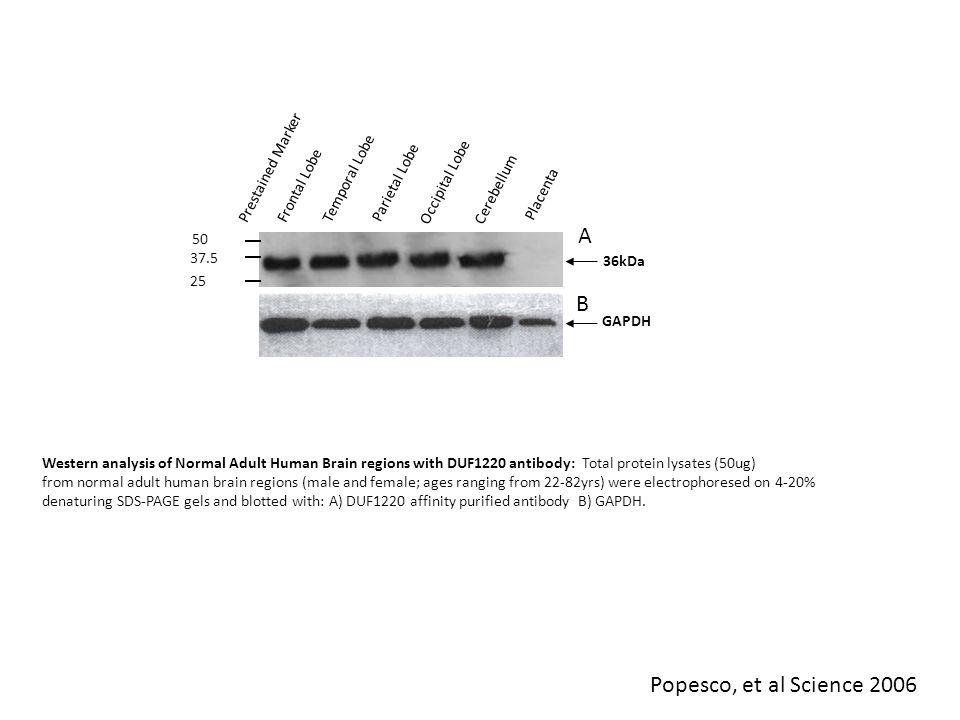 ChimpanzeeHuman DUF1220/NBPF Genome Organization in Chimp & Human O'Bleness, et al, G3: Genes, Genomes, Genetics, 2012