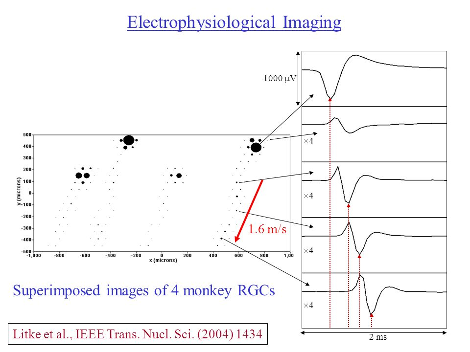 2 ms 1000  V 44 44 44 44 Electrophysiological Imaging 1.6 m/s Superimposed images of 4 monkey RGCs Litke et al., IEEE Trans.