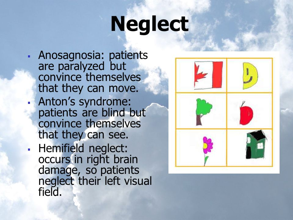 Neglect  Anosagnosia: patients are paralyzed but convince themselves that they can move.