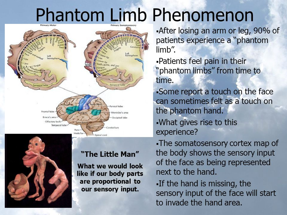 "Phantom Limb Phenomenon  After losing an arm or leg, 90% of patients experience a ""phantom limb"".  Patients feel pain in their ""phantom limbs"" from"