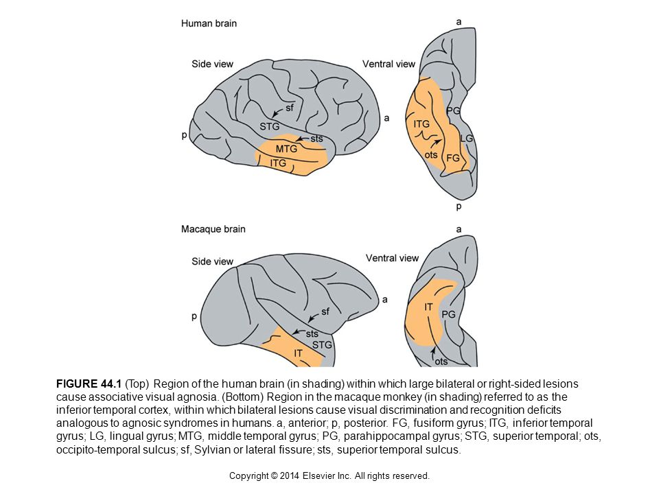 FIGURE 44.1 (Top) Region of the human brain (in shading) within which large bilateral or right-sided lesions cause associative visual agnosia.