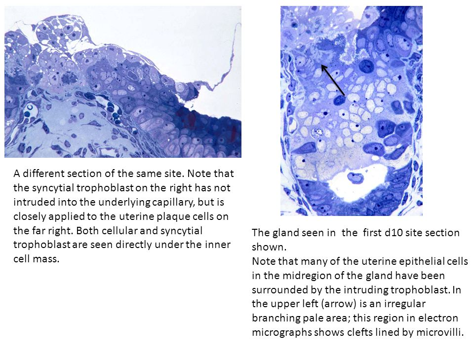 A different section of the same site. Note that the syncytial trophoblast on the right has not intruded into the underlying capillary, but is closely