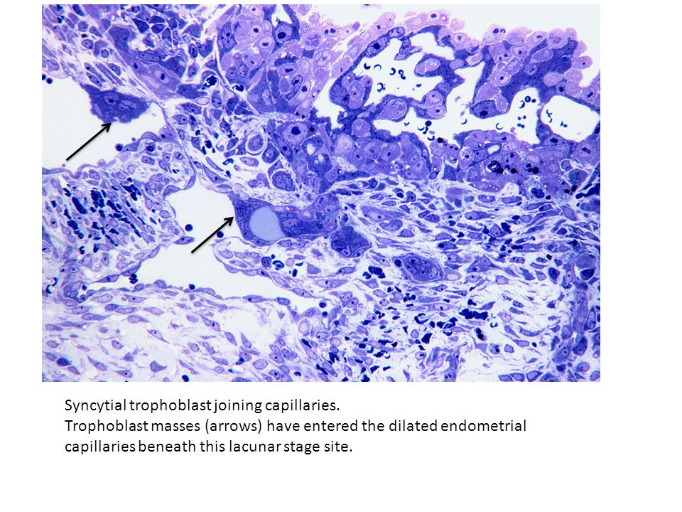 Syncytial trophoblast joining capillaries. Trophoblast masses (arrows) have entered the dilated endometrial capillaries beneath this lacunar stage sit