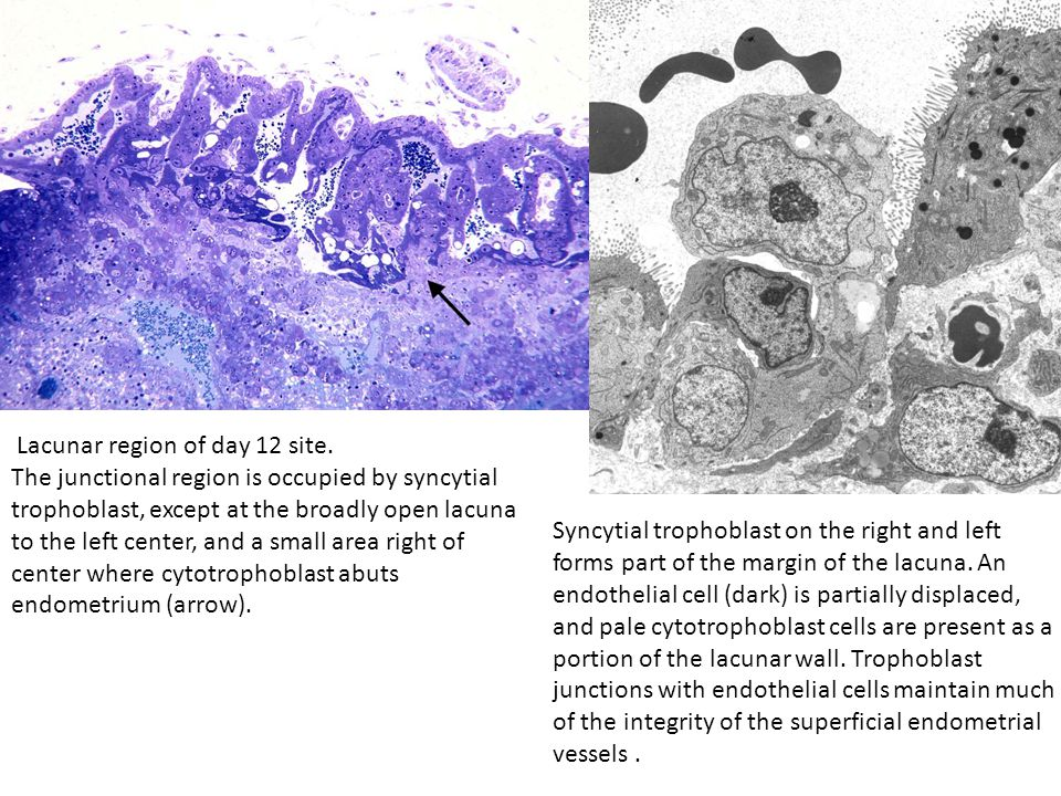 Lacunar region of day 12 site. The junctional region is occupied by syncytial trophoblast, except at the broadly open lacuna to the left center, and a