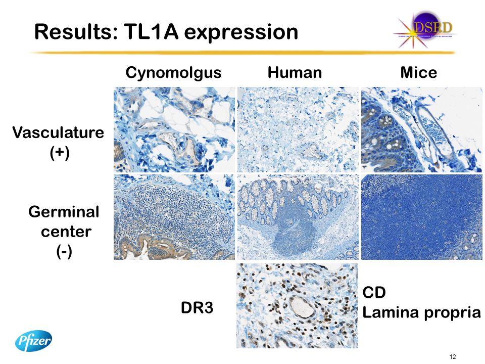 12 Cynomolgus Human Mice Vasculature (+) Results: TL1A expression Germinal center (-) DR3 CD Lamina propria