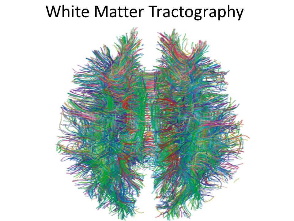 White Matter Tractography
